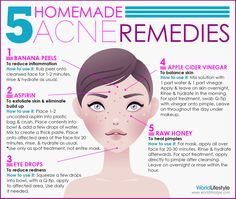 Read about our 5 Home-Acne- Remedie!