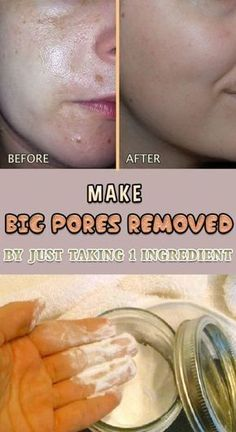 Large pores are most commonly formed because of clogged oil and dirt on the tiny follicles, making your face look uneven. Here are some natural remedies against large pores. Washing your face just with water will only dry it, so your pores will try to com Get Rid Of Pores, Minimize Pores, How To Get Rid Of Acne, Clean Pores, Natural Acne Remedies, Home Remedies For Acne, Dry Face Remedies, Blackhead Remedies, Acne Skin