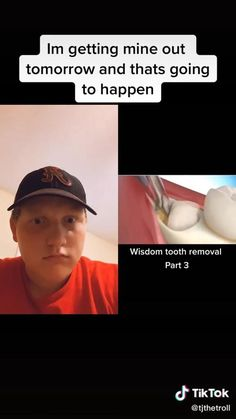 Wisdom Teeth Video, Wisdom Teeth Funny, Getting Wisdom Teeth Out, Funny People, Funny Things, Stupid Funny Memes, Hilarious, Wisdom Teeth Removal, School Jokes