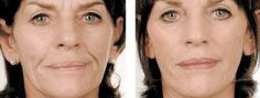 How Drastic Are The Muscle Stimulating Components Of Facelift Exercises? Do They In Reality Work?