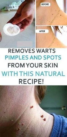 REMOVES WARTS PIMPLES AND SPOTS FROM YOUR SKIN WITH THIS NATURAL RECIPE!