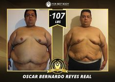 Oscar Bernardo Reyes Real from CL, Mexico, lost over 107 lbs! Not only a 100 lb Club Member, but our Men's Slim YOR Best Body Challenge #CHAMPION for 2014!  Read his inspiring testimonial here…