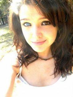 Born with Heterochromia Iridium - Imgur