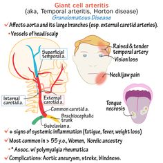 Giant Cell Arteritis aka, temporal arteritis or Horton disease. Giant Cell Arteritis, Polymyalgia Rheumatica, Aortic Aneurysm, Systemic Inflammation, Jaw Pain, Carotid Artery, Severe Headache, Magnetic Resonance Imaging, Things Under A Microscope