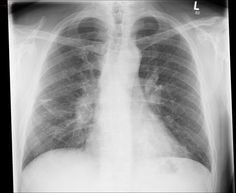 Sarcoidosis is a non-caseating granulomatous multi-system disease with a wide range of clinical and radiographic manifestations. As 90% of patients have pulmonary involvement, and chest x-rays are readily available and have low radiation burden, the pattern of nodal and parenchymal involvement is used to 'stage' sarcoidosis : see chest x-ray staging of sarcoidosis.  Read more: http://radiopaedia.org/articles/sarcoidosis-1