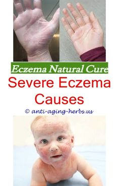 Sunscreen for eczema sufferers australia.Cream for dry skin and eczema.Eczema inflammation causes - Eczema Cure. Dry Skin Causes, Eczema Causes, Severe Eczema, Cetaphil Lotion, Nummular Eczema, Eczema Shampoo, Creepy, Dry Skin On Feet, Sewing Patterns