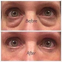 This patented product is unlike anything I have EVER seen, instant results….. long term results…. and  IT IS TRULY GOOD FOR YOU! naturally balanced Ph to your skin!  Want some Nerium Eye Serum?  Contact me at debiastone.nerium.com