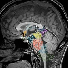 Diagnóstico y Precisión anatómica en imagen avanzada por #ResonanciaMagnética  #radiology #MRI #neurology #brainimaging #Radiología #instaradiology #radiographer #xraytech #xray