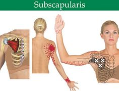 Subscapularis: Overlooked and Undertreated