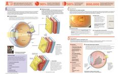 ¿Se puede curar la degeneración macular? #dmae www.macula-retina.es Asociación Mácula Retina