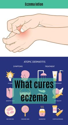 Best Ointment For Eczema. Itchy skin and eczema medication. On the list of various chronic skin disorders, eczema is among the most frequent. Physical Stress, Emotional Stress, Eczema Causes, Moisturizer For Sensitive Skin, Dry Scalp, Skin Rash, Patches