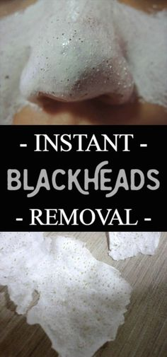 Instant blackheads removal.