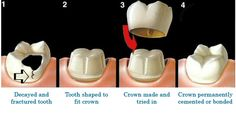 Teeth whitening kits - teeth whitening #whiteningstrips #whiteningkits #teethwhitening