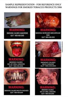 Snus News & Other Tobacco Products: India - pictorial warning will appear on every tobacco pack sold from June 1 , 2010..