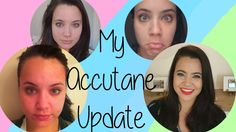 POST ACCUTANE UPDATE (5 Months) || WanderBlushHey y'all! New Video this WanderBlush Wed! Since my previous Accutane video has been watched over 14,000 times, I decided to make another one. I let you know how I have coped with the physical and mental effects #Isotretonin has had on me. Be sure to click the subscribe button for more, like, and share to keep my little corner of the internet growing! xoxo #WanderBlush #YouTube #Accutane