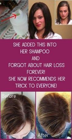 She Added This into Her SHAMPOO and Forgot About Hair Loss FOREVER! She Now Recommends Her Trick To Everyone! Essential oils have become pretty common nowadays, with people fully realizing their tr… Diy Shampoo, Homemade Shampoo, Hair Loss Shampoo, Hair Loss Remedies, Thinning Hair Remedies, Hair Thickening Remedies, Prevent Hair Loss, Stop Hair Loss, Hair Regrowth