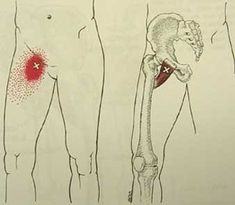 Pectineus trigger point diagram, pain patterns and related medical symptoms. The myofascial pain pattern has pain locations that are displayed in red and associated trigger points shown as Xs. Trigger Point Massage, Trigger Point Therapy, Hip Flexor Exercises, Knee Exercises, Fascia Stretching, Sciatic Pain, Sciatic Nerve, Nerve Pain, Sciatica