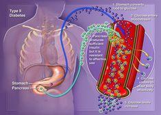 La insulina y la lipólisis (quema de grasa)