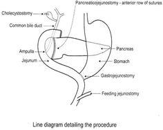 duodenal diverticulization