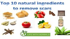 Do you hate the scars which pimples, sun and stretch marks left on your skin? Remove these without spending lots of money on toxic chemical filled products. #stretchmarks #pimplescars #acnescars #tanning #scars #removescars #natural #holistic #lifestyle #skincare #acne #pimple #sunspots http://www.lifewithherbals.com/top-10-natural-ingredients-remove-scars/