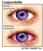 Conjunctivitis: Causes, symptoms, treatments, prevention