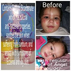 A follow up on the review. Amazing results. Acorn Kids, Dry Skin, Amazing, Face, Color, Colour, The Face, Faces, Facial