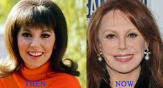 MARLO THOMAS -PLASTIC SURGERY GONE WRONG