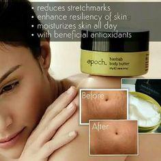 Nu Skin, Epoch, Stretch Marks, Body Butter, Moisturizer, Pregnancy, Skin Care, Exercise, Amazon