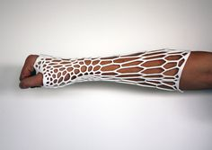 3D Printed Casts: The Future of Healing Broken Bones
