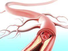 Cet élixir nettoie efficacement les artères, régule les lipides sanguins, aide pour les rhumes et les infections, stimule l'immunité et nettoie votre foie.