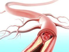 Natural remedy for atherosclerosis, clogged arteries.