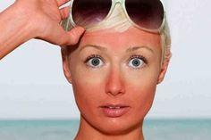 Развенчание мифа о пользе «солнечного витамина D» — БУДЬ В ТЕМЕ
