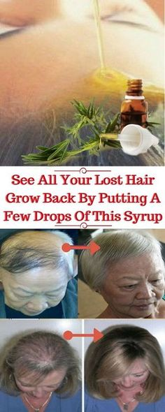 You do not have to worry any more if you are dealing with hair loss. Today we will present you an amazing recipe that will prevent baldness and hair loss. Old herbal oils are the main ingredients in this serum. These oils are able to restart the growth of fallen hair and stimulate hair facilities. …