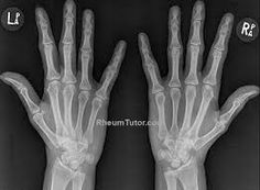 Image result for x ray