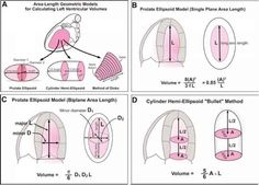 Fig. 13. Geometric models to estimate left ventricle (LV) volumes by two-dimensional echocardiography use short-axis area multiplied by long-axis length. Comparison of volumes at end-systole and end-diastole can be a measure of LV systolic function.