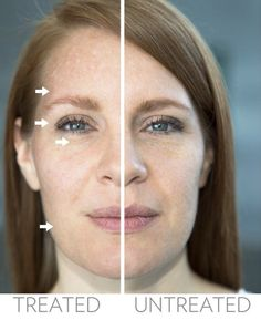 Anti-aging quick results!  This photo taken after one 5 minute application of AgeLOC Me to right side of models face.  Even in a beautiful young lady you see a noticeable lift and glow!