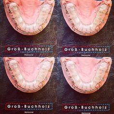 Wir empfehlen: Mit 7 Jahren zum Kieferorthopäden! We recommend an orthodontic screening at age 7  #brace of the #day #saturday #zahnspange #glitter #white  #orthodontics #orthodontist #kieferorthopädie #kieferorthopäde #kfobabai #kinder #hannover #ortodoncia #ortodontia #dental #dentistry #dentist #dentista #pink #dentallife #dentalassistant #rose #xmas #christmas #black #weihnachten #glitzer #quote