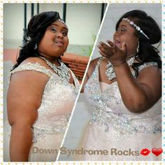 SOOO BEAUTIFUL Down Syndrome, Learning Activities, Beautiful People, Pure Products, Formal Dresses, Fashion, Dresses For Formal, Moda, Formal Gowns