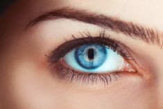 laser eye surgery turns brown eyes to blue permanently Laser Eye Surgery, Eyelid Surgery, Heal Cavities, How To Prevent Cavities, Teeth Health, Healthy Teeth, Contour, Eyelid Lift, Change Your Eye Color