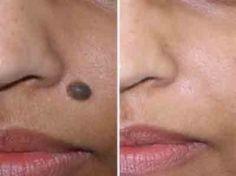 Cmo quitar lunares de la cara - Vinagre de manzana eliminar lunares, verrugas y marcas en la piel ... Ver Vdeo! Amazing!