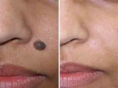 How To Remove Moles From Face - Apple Cider Vinegar will remove moles, warts & skin tags... Watch Video! Amazing!
