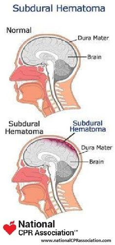 Subdural Hematoma #nationalCPRassociation #nationalCPR