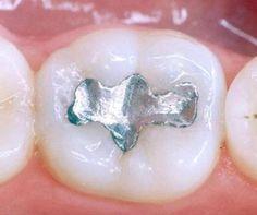 Otturazioni dentali e intossicazioni da mercurio: quali rischi - Ambiente Bio
