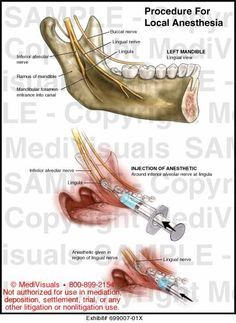 Image detail for -MediVisuals Procedure for Local Anesthesia Medical Illustration