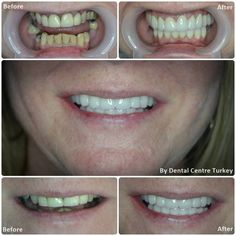 The largest provider of Dental Treatment in Turkey. We provide a range of treatments including: Dental Implants, Porcelain Crowns, Dental Veneers and Smile Makeovers. Contact us today about your dental treatment in Turkey Teeth Implants, Dental Implants, Maryland, Porcelain Crowns, Dental Veneers, Smile Makeover, Dental Bridge, Smile Design, Dental Hygienist
