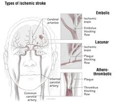 Strokes can damage brain tissue in the outer part of the brain (the cortex) or deeper structures in the brain underneath the cortex. A stroke in a deep area of the brain (for example, a stroke in the thalamus, the basal ganglia or pons) is called a l. Stroke Risk Factors, Recovering From A Stroke, Carotid Artery, Stroke Recovery, Harvard Health, Healthy Cholesterol Levels, Normal Blood Pressure, Homeopathic Medicine