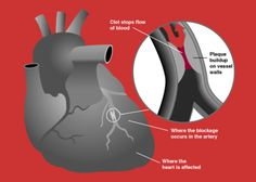 MYOCARDIAL INFARCTION ➡ Partial interruption blood supply to part of heart muscle, causing heart cells damaged or die. Most commonly due to occlusion (blockage) of coronary artery following rupture of vulnerable atherosclerotic plaque, (unstable collection cholesterol, fatty acids, wbc's in wall of artery. Resulting ischemia (restriction in blood supply) & ensuing oxygen shortage, left untreated sufficient time, cause damage or death (infarction) of heart muscle tissue (myocardium). 5.17.13