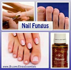1837 Best Nail Fungus Young Living images in 2019 | Toe Nails ...