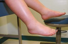 Water retention usually appears in your feet and legs, they become swollen and inflamed, making people feel bloated and puffy. This retention may occur...