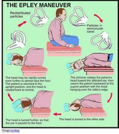 Do you have the common vestibular impairment called Benign Paroxysmal Positional Vertigo (BPPV)? Learn more at Holland Physical Therapy. Chia Benefits, Health Benefits Of Ginger, Avocado Health Benefits, Cardio Yoga, Occupational Therapy, Physical Therapy, Epley Maneuver, Vertigo Exercises, Vertigo Relief